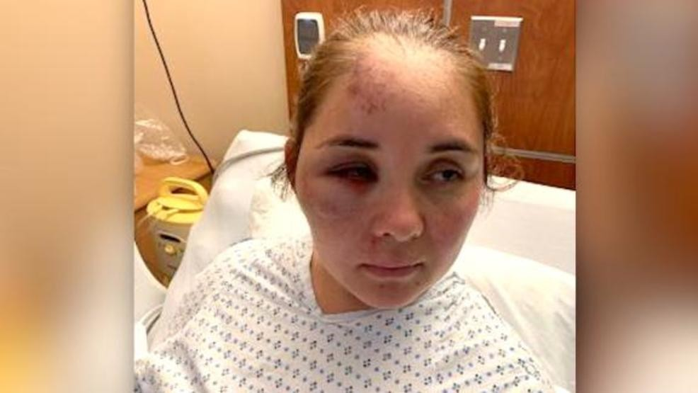 Mom brutally attacked by 13-year-old boy who told her son to ...